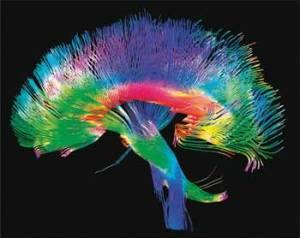 Conectomas. Un mapa de las conexiones de nuestras neuronas. Credit: humanconnectomeproject.org/
