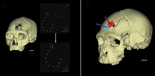 Los dos traumas del cráneo 17 y las trayectorias de cada uno de los impactos. Foto: Nohemí Sala
